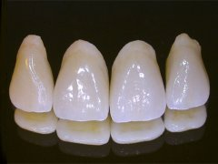 porcelain_dental_crowns.jpg